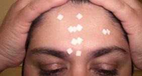 Application de patches sur les points réflexes du front d'une patiente